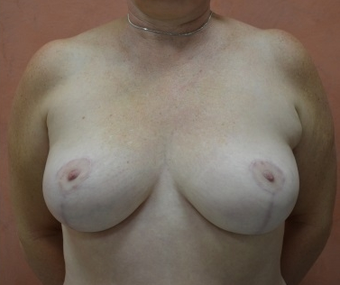 Breast Reduction after 1450842