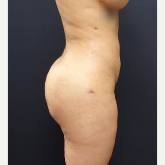 25-34 year old woman treated with Brazilian Butt Lift after 3266992
