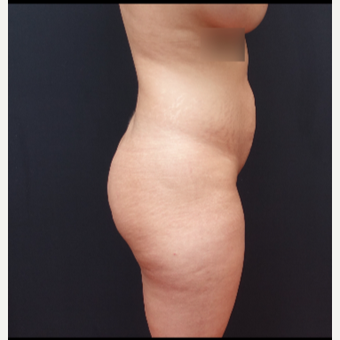25-34 year old woman treated with Brazilian Butt Lift before 3266992