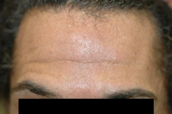 Dysport (Botox) for Deep Forehead Wrinkles in Male Patient before 1118222