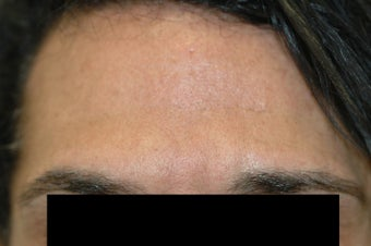 Dysport (Botox) for Deep Forehead Wrinkles in Male Patient after 1118222