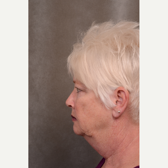 55-64 year old woman treated with Facelift before 3530275