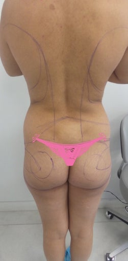 25-34 year old woman treated with Slim Lipo before 3495920