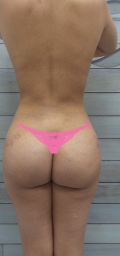 25-34 year old woman treated with Slim Lipo after 3495920