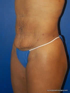 Tummy Tuck before 1115435