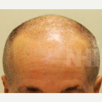 65-74 year old man treated with Scalp Micropigmentation before 3093184