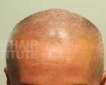65-74 year old man treated with Scalp Micropigmentation after 3093184