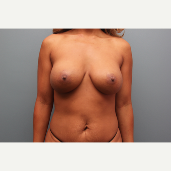 36 year old woman had a breast implant revision with capsulotomy after 3379933