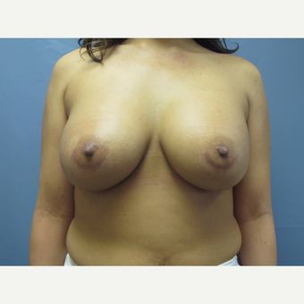 36 year old woman had a breast implant revision with capsulotomy before 3379933
