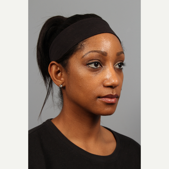 25-34 year old woman treated with African American Rhinoplasty after 3723872
