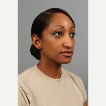 25-34 year old woman treated with African American Rhinoplasty before 3723872