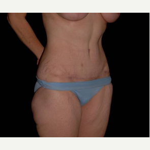 Tummy Tuck after 2718253