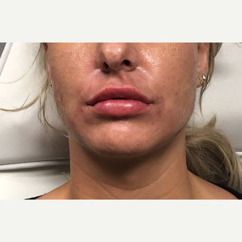 35-44 year old woman treated with Juvederm Ultra after 3802195