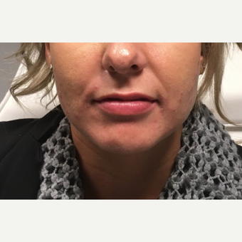 35-44 year old woman treated with Juvederm Ultra before 3802195