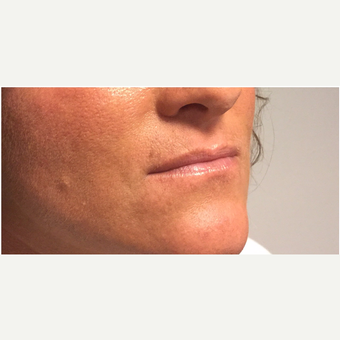 35-44 year old woman treated with Juvederm before 3331649