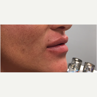 35-44 year old woman treated with Juvederm after 3331649