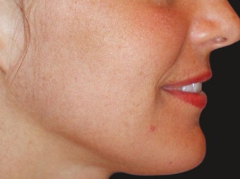 Fraxel Restore for Indented Acne Scarring and Pigmentation