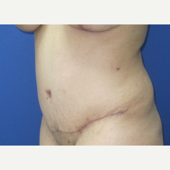 35-44 year old woman treated with Tummy Tuck after 3695206