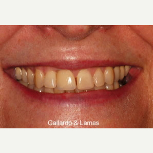 25-34 year old woman treated with Dental Implants after 3093814