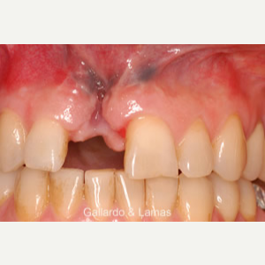 25-34 year old woman treated with Dental Implants before 3093814