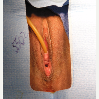 25-34 year old woman treated with Vaginal Rejuvenation before 2806171