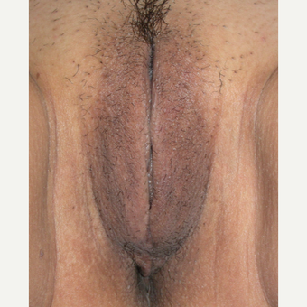 25-34 year old woman treated with Vaginal Rejuvenation after 2806171