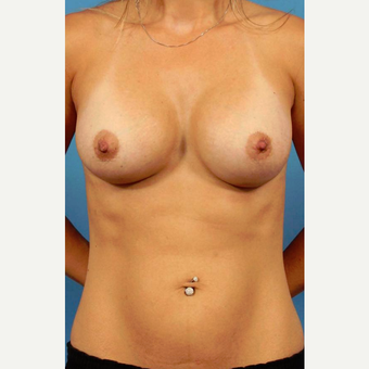25-34 year old woman treated with Breast Implants after 3787043