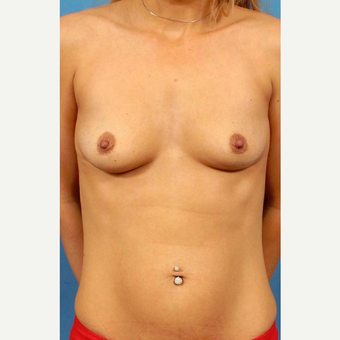 25-34 year old woman treated with Breast Implants before 3787043