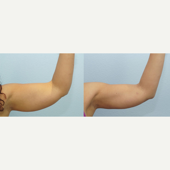 45 yr old Female - Arm Lift after 3099755