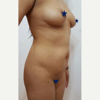 18-24 year old woman treated with Tummy Tuck before 3249158