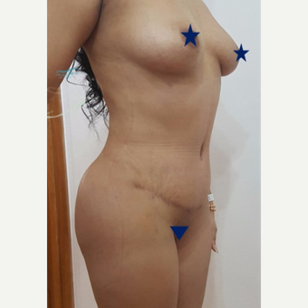 18-24 year old woman treated with Tummy Tuck after 3249158