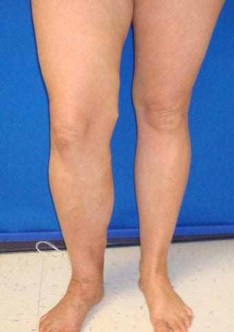 51 year old female with long history of right leg swelling and severe varicose veins before 1106188