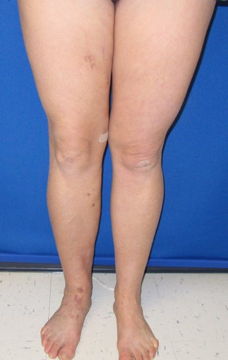 51 year old female with long history of right leg swelling and severe varicose veins after 1106188