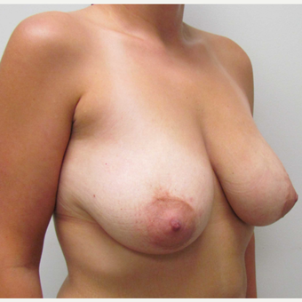 Breast Lift with Implants for this 34 Year Old Woman before 3670804