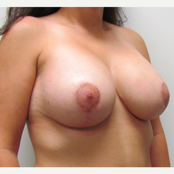 Breast Lift with Implants for this 34 Year Old Woman after 3670804