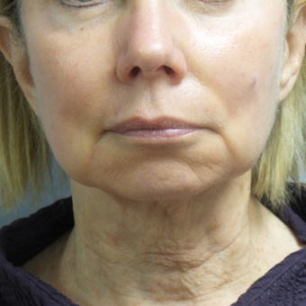 65-74 year old woman treated with Facelift before 3488649