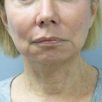 65-74 year old woman treated with Facelift after 3488649