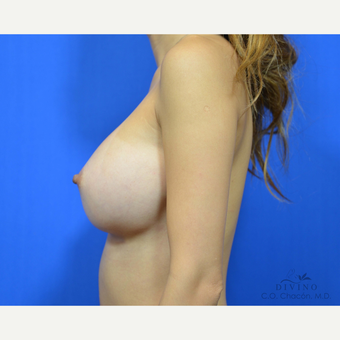 25-34 year old woman treated with Breast Augmentation after 3329304