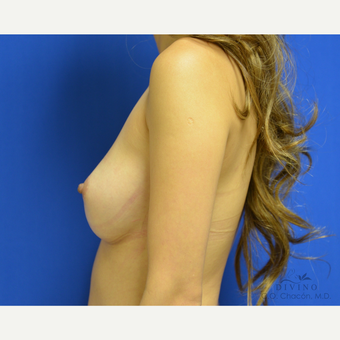 25-34 year old woman treated with Breast Augmentation before 3329304