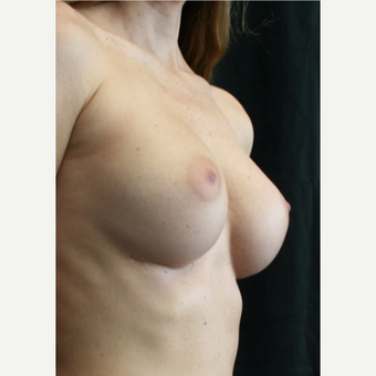25-34 year old woman treated with Breast Augmentation after 3399535