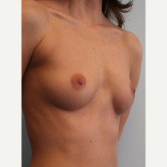 25-34 year old woman treated with Breast Augmentation before 3399535