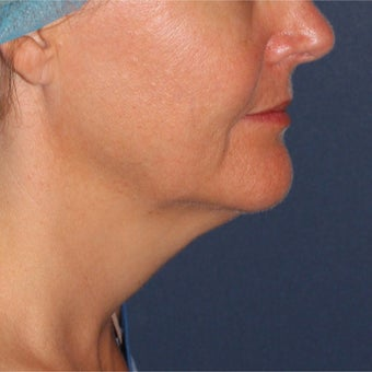 47 year old female treated with ThermiTight under chin before 2132595