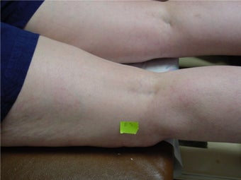 spider vein sclerotherapy after 297048