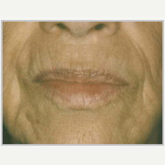 65-74 year old woman treated with ProFractional Laser before 2700024