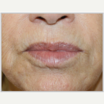 65-74 year old woman treated with ProFractional Laser after 2700024