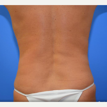 45-54 year old woman treated with CoolSculpting after 2066926