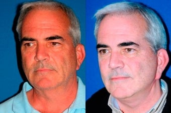 54 year old man treated with Facelift before 3004817