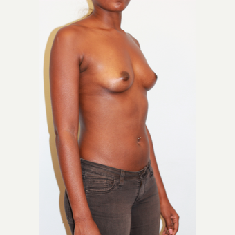 18-24 year old woman treated with Breast Augmentation before 3026891