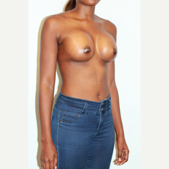 18-24 year old woman treated with Breast Augmentation after 3026891