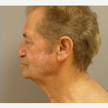 55-64 year old man treated with Facelift before 3109368
